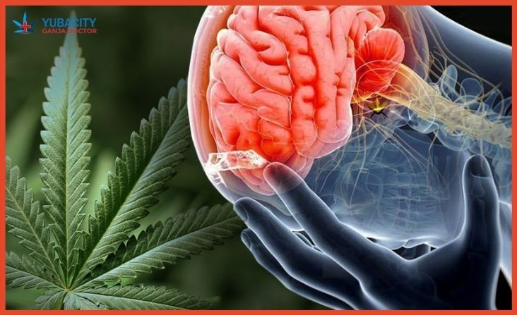 Medical Marijuana For Migraine